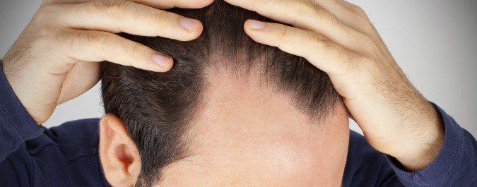 Los medios medicinales de la caída de los cabello para las mujeres