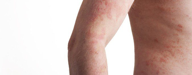 Picazón, enrojecimiento, descamacióny dolor son síntomas de psoriasis