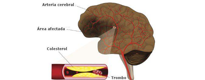 En el ictus isquémico, un trombo no deja pasar la sangre hacia el cerebro