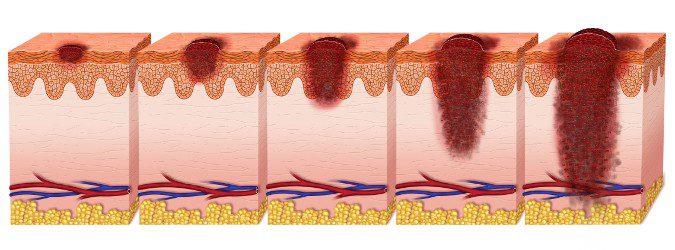 El melanoma puede comenzar en la piel normal o a partir de un lunar de nacimiento