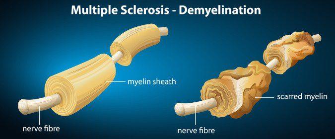 Los síntomas de la esclerosis múltiple se producen por la pérdida de la mielina de los axones de las células nerviosas