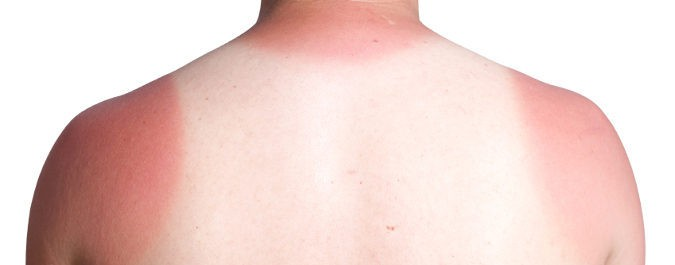 Las quemaduras solares no sólo aparecen cuando vamos a la playa o la piscina, ¡el sol está en todos lados!