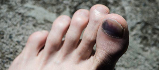 Al llevar chanclas debemos tener especial cuidado con los golpes, nuestros pies están más expuestos.