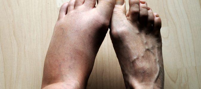Uno de los primeros síntomas son los pies o manos hinchadas.