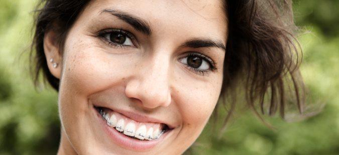 Adulto con ortodoncia