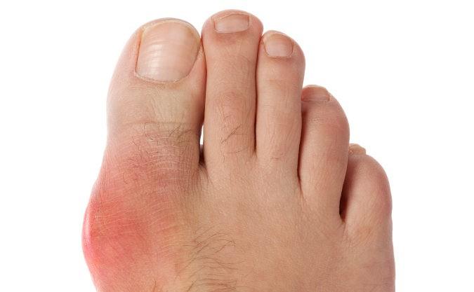 dieta semanal para reducir el acido urico como se quita el acido urico de las rodillas alimentos causan acido urico