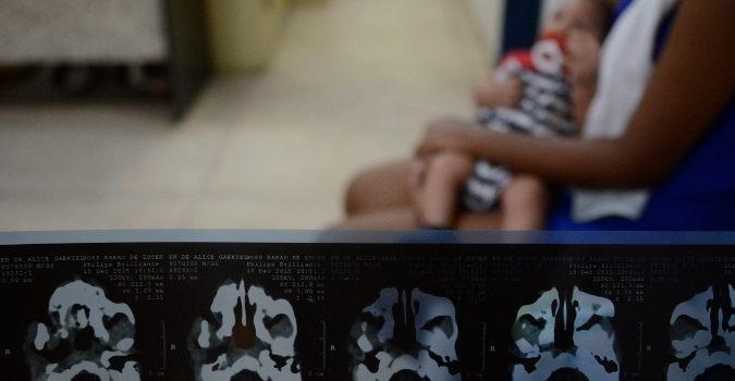 Los problemas derivados de la microcefalia dependen de la zona del cerebro afectada