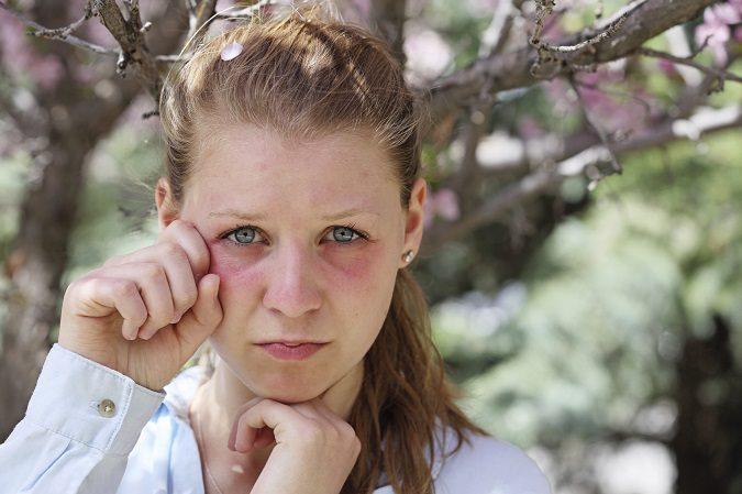 El picor de ojos puede ser muy molesto