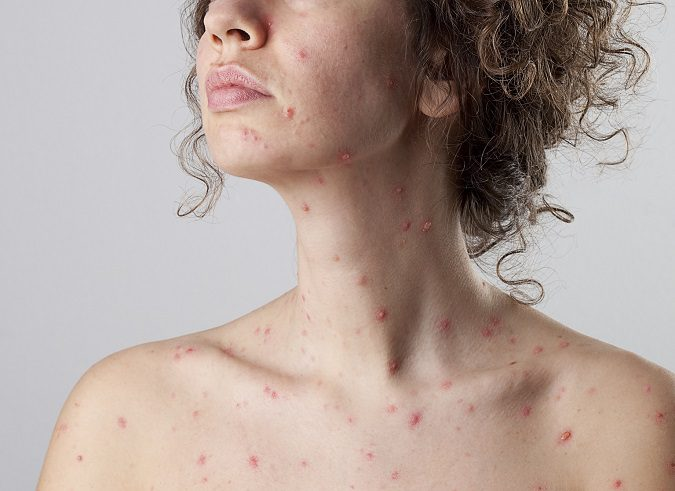 La varicela durante el embarazo puede ser peligroso para el bebé