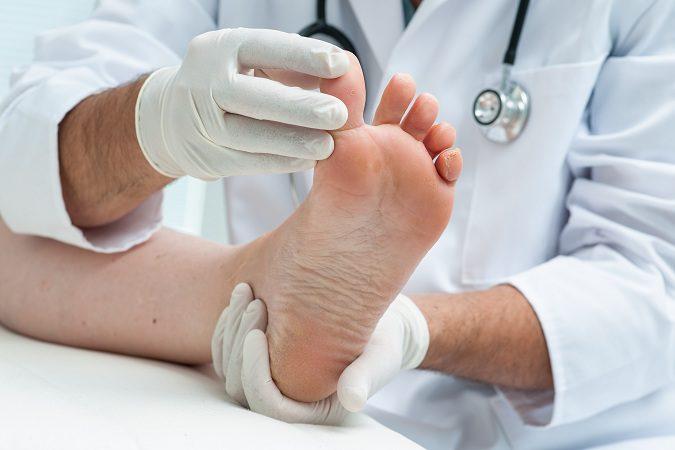 Los pies zambos es un tipo de deformidad de los propios pies