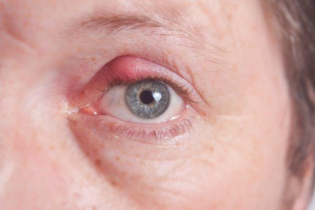 El principal síntoma es la inflamación de una de las zonas del párpado