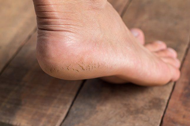 Aparece en personas que someten a una gran carga las plantas de los pies