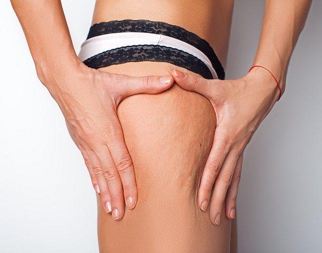 El principal síntomas de las varices pélvicas es el dolor