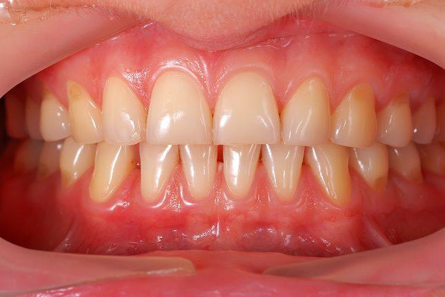 Una falta de la higiene adecuada para tener los dientes sanos también puede causar que las encías se vuelvan más oscuras