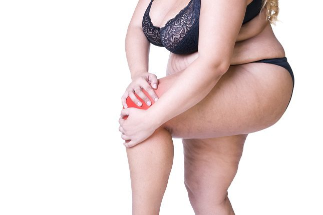 Donde antes suele aparecer la piel de naranja es en las piernas