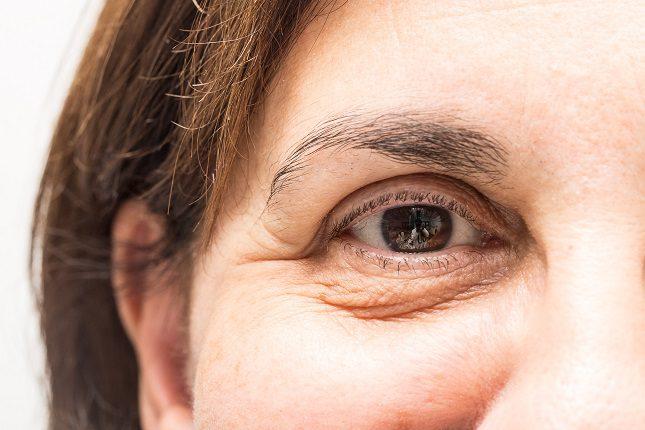 La piel alrededor de tus ojos es muy delgada y esto hace que sea extremadamente sensible