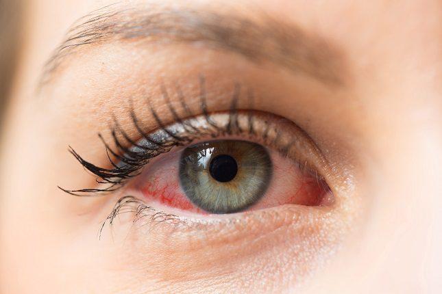 Los alérgenos también pueden causar la conjuntivitis