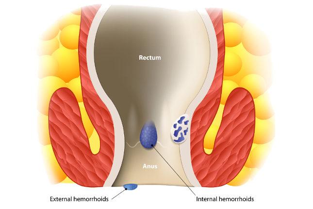 La operación de hemorroides se realiza cando el resto de tratamientos son insuficientes