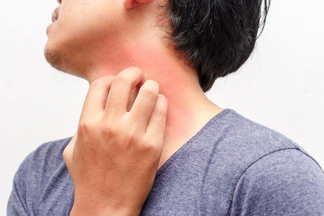 El síntoma más visible de la urticaria es sin lugar a dudas el picor de la piel