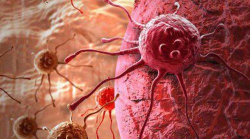 Diferencias entre tumor y cáncer