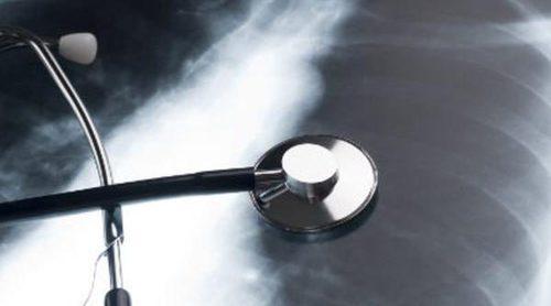 Causas y síntomas de la fibrosis pulmonar