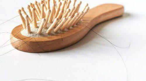 ¿Qué causa la alopecia femenina?