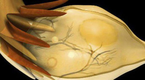 Cáncer de ovario: Todo lo que necesitas saber