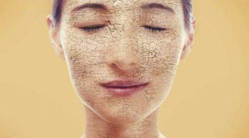 Qué es la ictiosis o piel de pescado