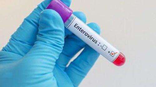 Qué es el enterovirus