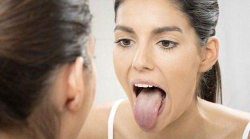 Remedios caseros para tratar la lengua blanca