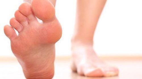 Qué son los pies zambos o equinovaros