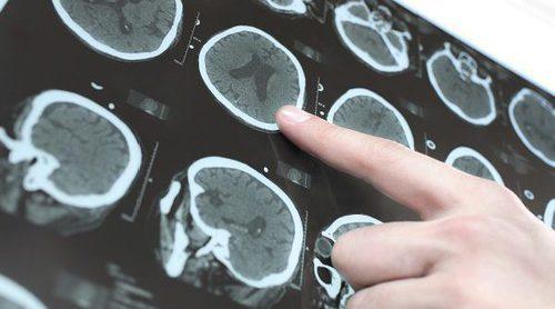 Qué es un derrame cerebral y por qué se produce