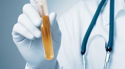 ¿Para qué se realizan pruebas de orina o de heces?