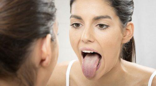 Qué es y cómo tratar la candidiasis bucal