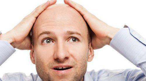 Conoce los diferentes tipos de alopecia