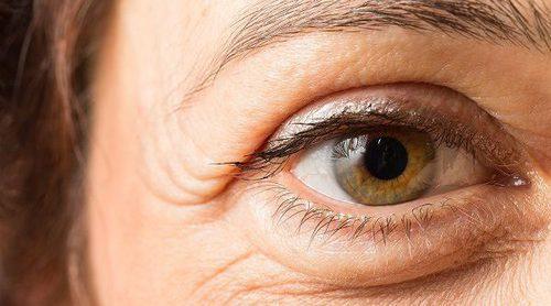 Qué son las bolsas en los ojos y por qué salen