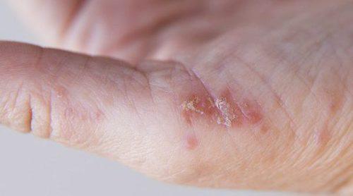 Qué es y en qué consiste tener psoriasis