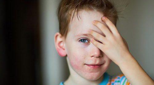 Cómo saber si tienes dermatitis atópica
