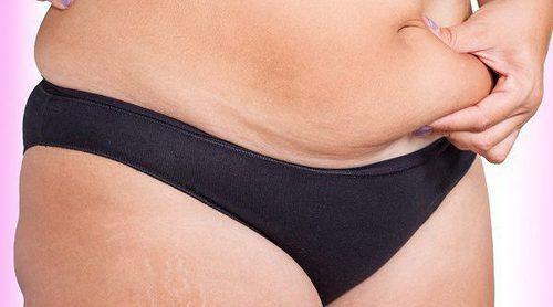 Qué le pasa a tu cuerpo si tienes kilos de más