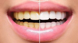 Hábitos saludables que destruyen tus dientes poco a poco
