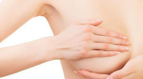 Cómo estar saludable después de un cáncer de mama