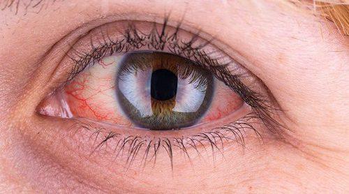 8 remedios caseros para la conjuntivitis