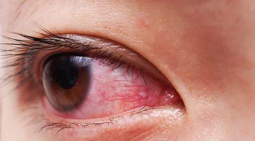 Conjuntivitis vírica: cómo tratarla