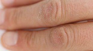 Piel agrietada en las manos, ¿cómo prevenirlo?