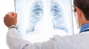 Cómo prevenir el cáncer de pulmón
