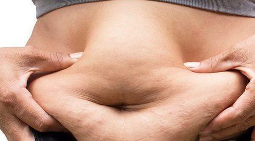 Obesidad y demencia, ¿están relacionados?