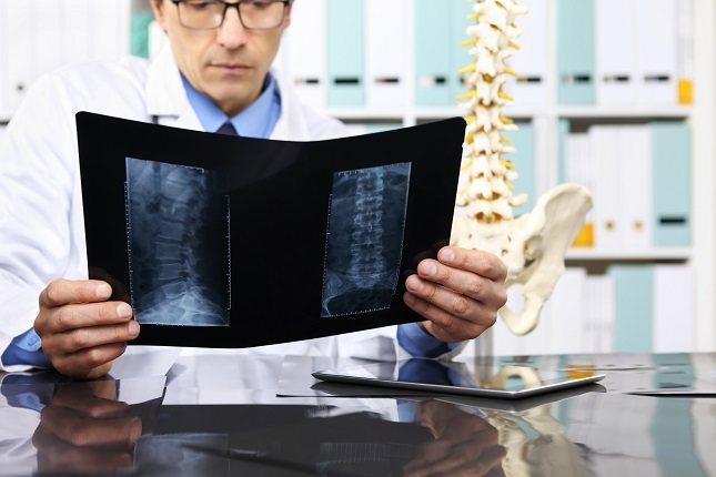 Las hernias se pueden reducir