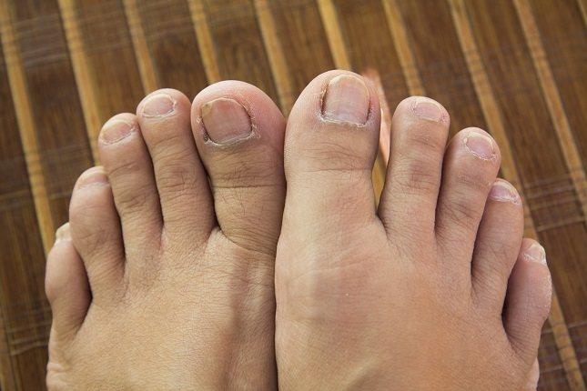 Los pies hinchados a menudo ocurren como resultado de una afección llamada edema periférico