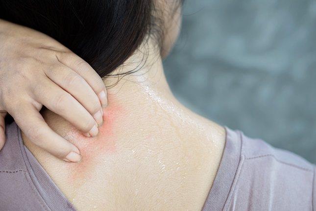 El lupus eritematoso sistémico -también conocido como LES- es una afección autoinmunitaria no infecciosa