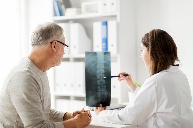 La espondilitis anquilosante suele comenzar en las articulaciones sacroilíacas